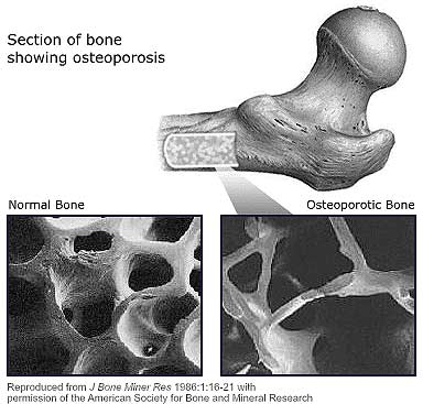 bone_section